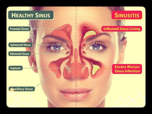 http://www.healthholistic.com/wp-content/uploads/2018/12/sinus-640x480.jpg