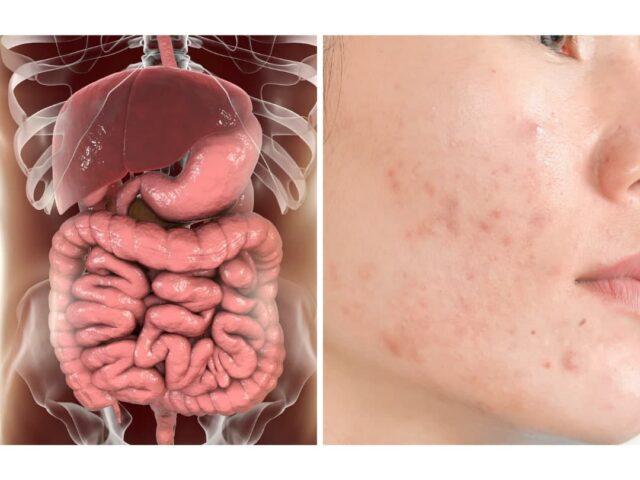 https://www.healthholistic.com/wp-content/uploads/2021/02/Holistic-Healing-Digestive-Blog-640x480.jpg