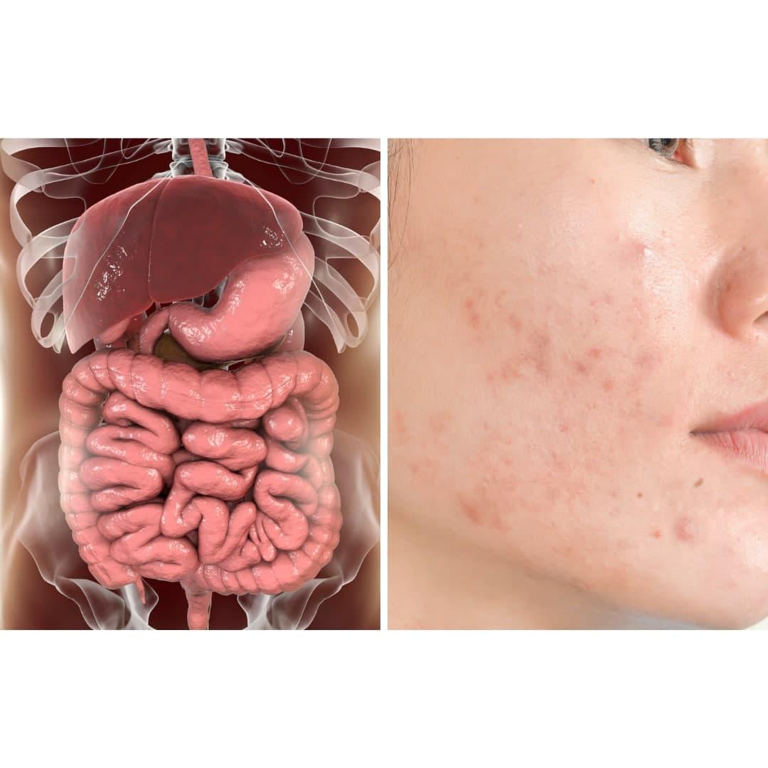 Holistic-Healing-Digestive-Blog.jpg